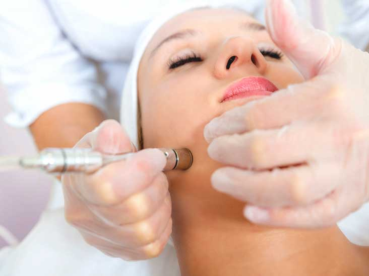 Image result for microdermabrasion