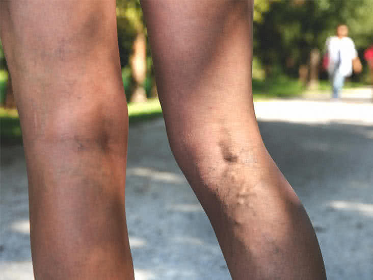 varicose vein pain in lower leg