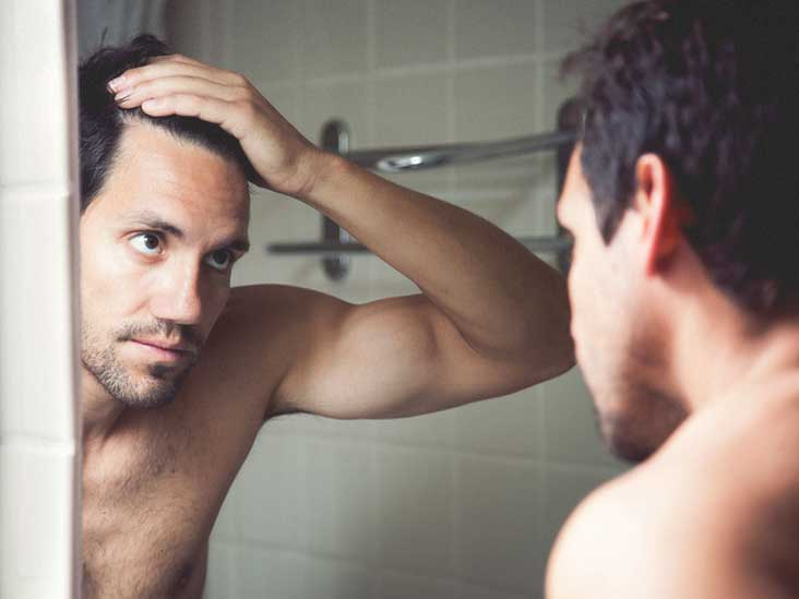Receding Hairline: Stages, Causes, and Treatments