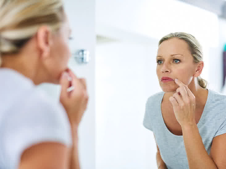 How To Numb Skin >> Tingling Lips: 10 Possible Causes
