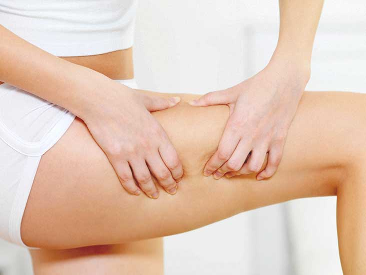 Understanding Cellfina for Cellulite Reduction