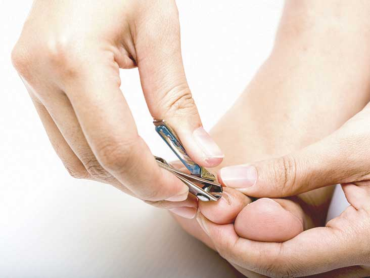 Thick Toenails Pictures Causes And Home Treatments