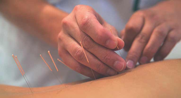 Acupuncture After a Stroke: Does It Work?