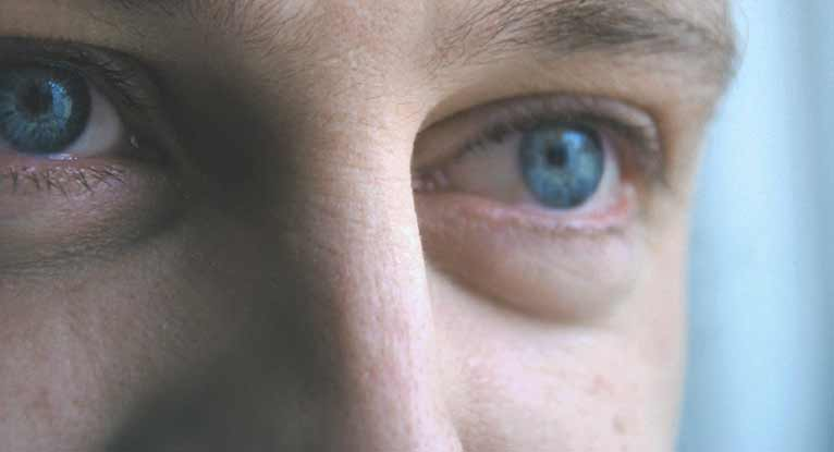 Are Dry Eyes Causing My Headaches?