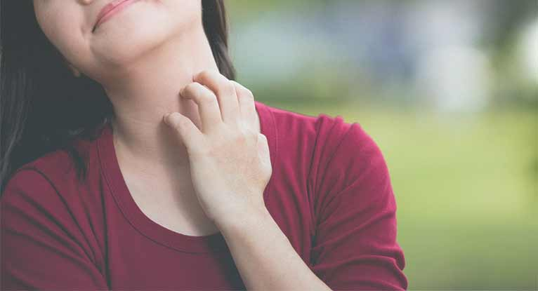 How to Avoid Atopic Dermatitis Flare-Ups