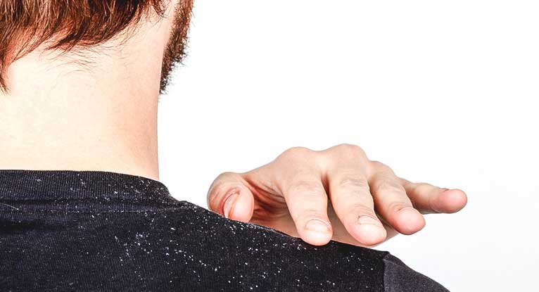 Is Dandruff Contagious? And Other Important Questions About Those Frustrating Flakes