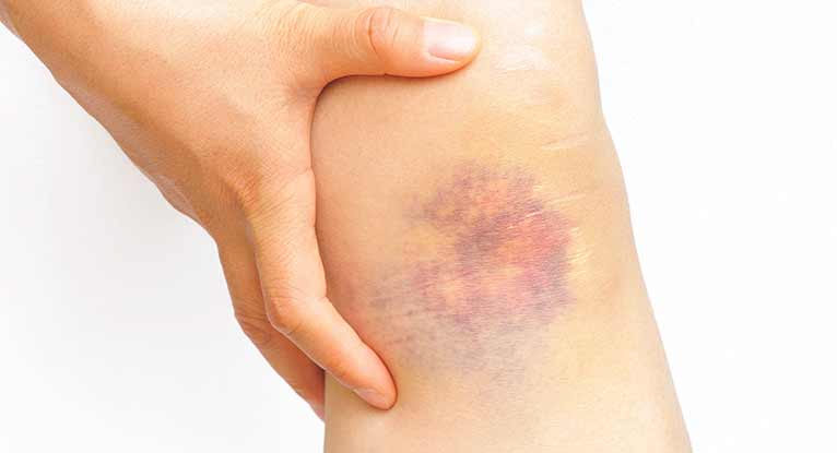The Colorful Stages of Bruises: What's Going on in There?