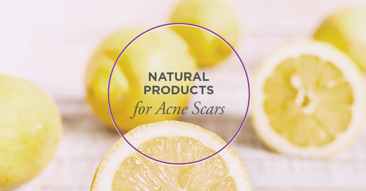 acne scars natural rid skin care help