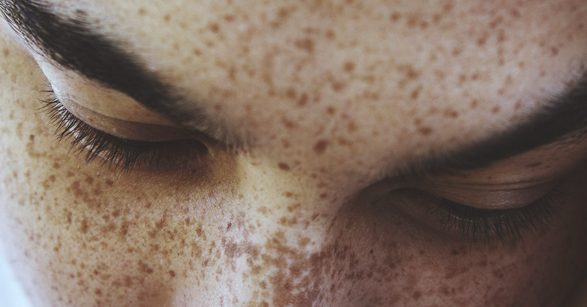 How To Get Rid Of Freckles 7 Ways