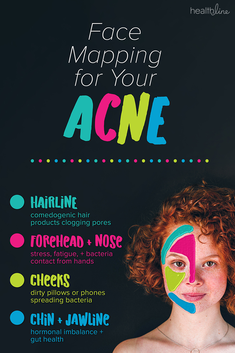 What Acne Spots On Your Face Mean According To Science