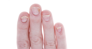What is onycholysis or nail lifting? - Sharecare