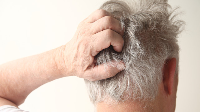 Did you know that scalp diseases such hair psoriasis can persist for as long as five years 1