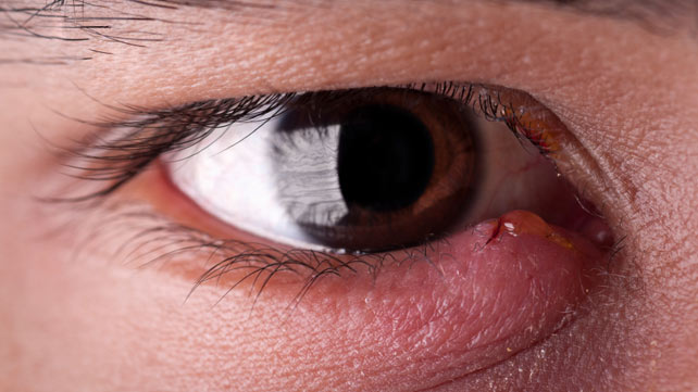 how to get rid of a stye: 8 home remedies and treatments, Skeleton