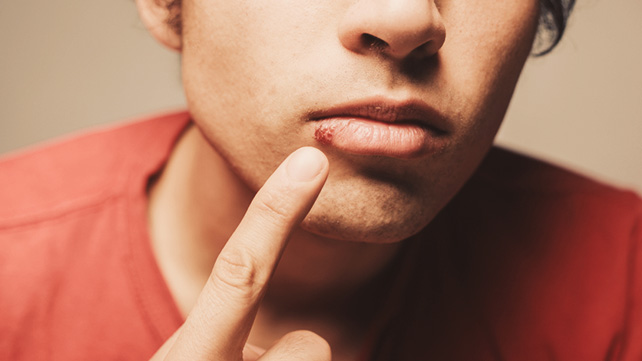 The 6 Best Cold Sore Remedies