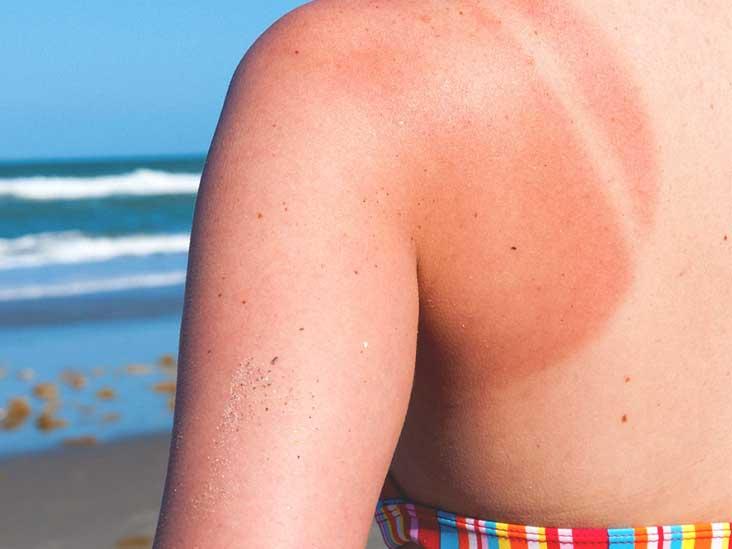 How Long Does a Sunburn Take to Heal?