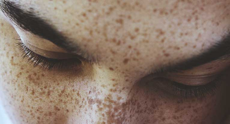 Freckles: Remedies, Causes, and More