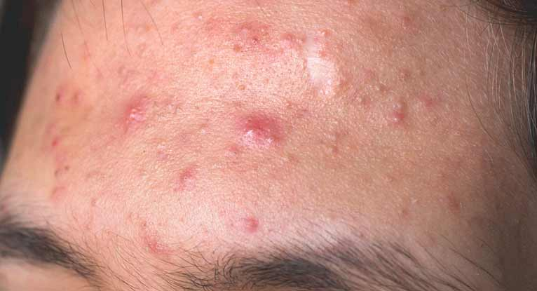 How Can I Prevent Pimples from Forming?