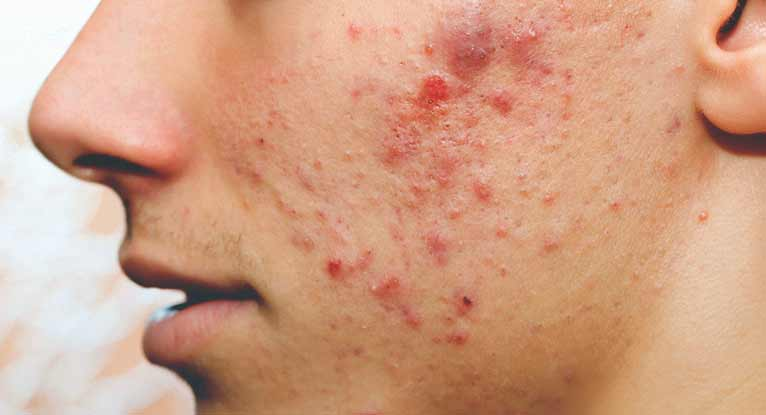 cure for acne caused by steroids
