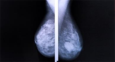 Stage 1 Breast Cancer: Understanding Your Outlook