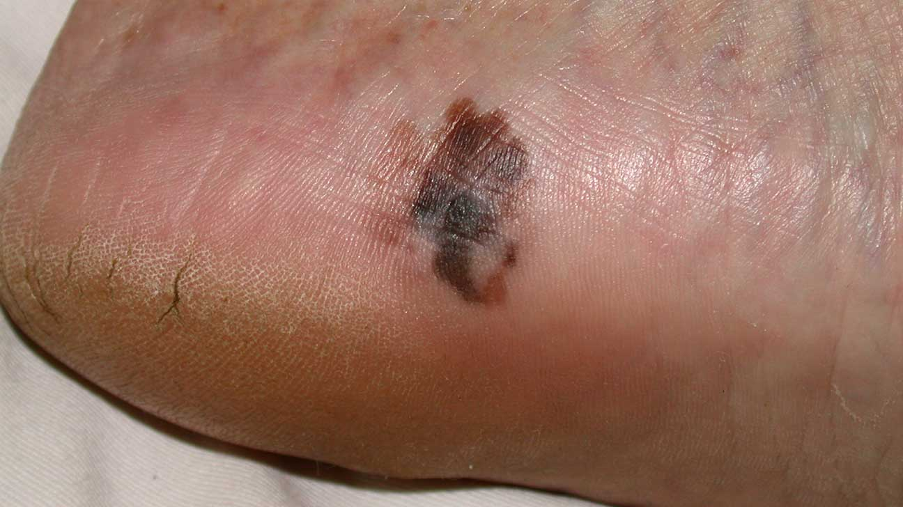 Foot Melanoma: Symptoms, Causes, and Treatments