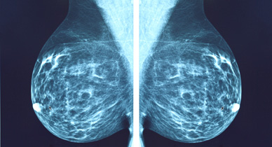 Understanding the Difference Between Invasive and Metastatic Breast Cancer