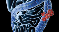 Colorectal (Colon) Cancer