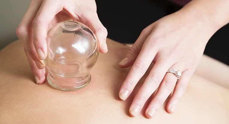 I Tried Cupping and Here's What It Was Like