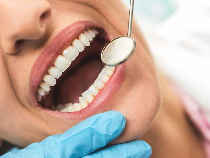 Enamel Erosion: Causes, Treatment, and Prevention