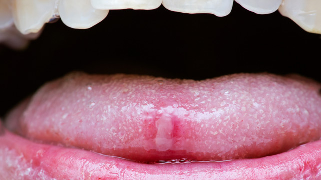 Tongue Bumps: Enlarged Papillae and Other Problems