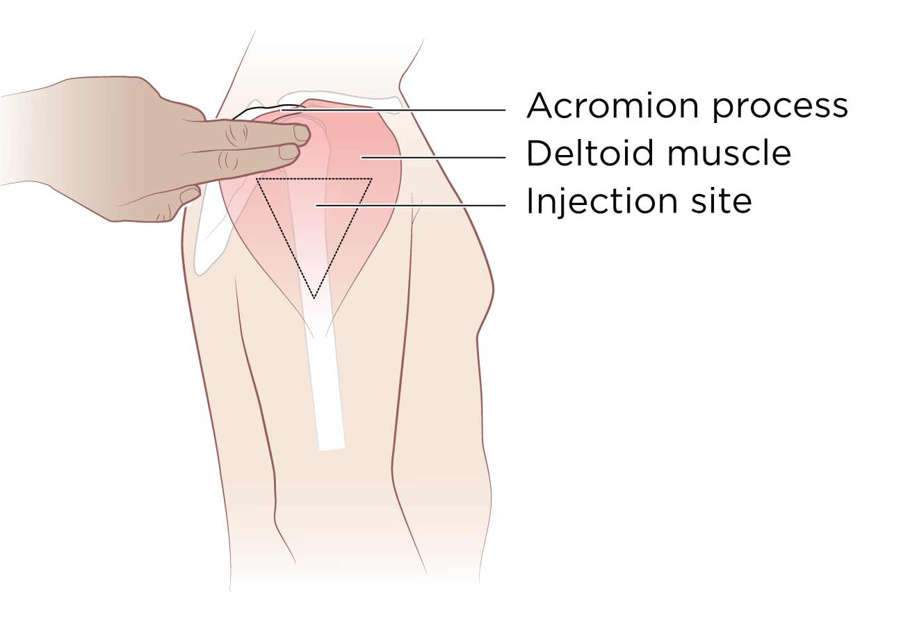 intramuscular injection What is an intramuscular injection an intramuscular (im) injection is a shot of medicine given into a muscle certain medicines need to be given into the muscle for them to work correctly.
