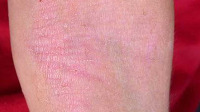 Eczema Definition Causes Treatments And Pictures