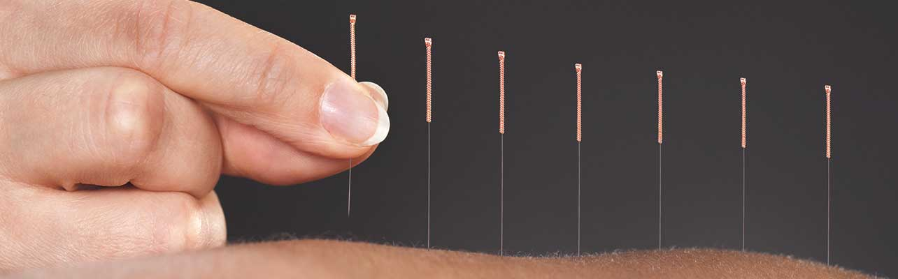 acupuncture and chiropractic care