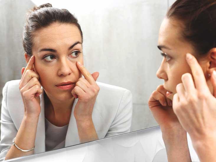 What Causes Sunken Eyes?
