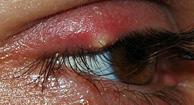 External eyelid stye