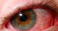 Eye redness