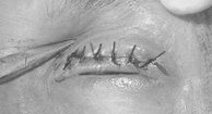 Eyelid turned in - entropion