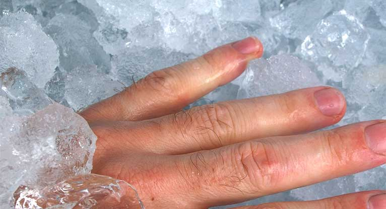 Identifying and Treating a Jammed Finger