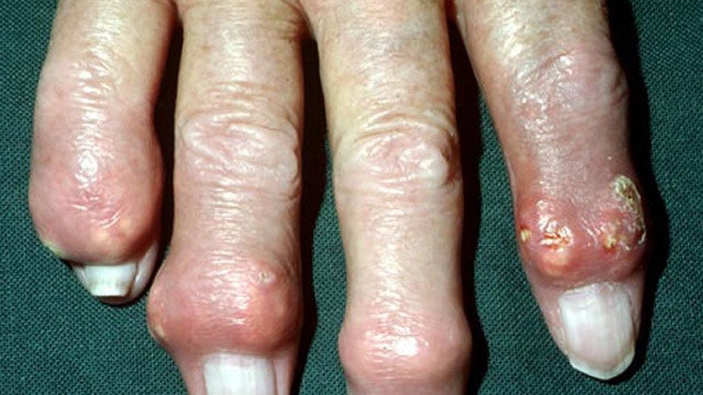 Gout Symptoms  Managing  Risk Factors  And Complications
