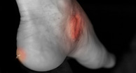 Gout Complications