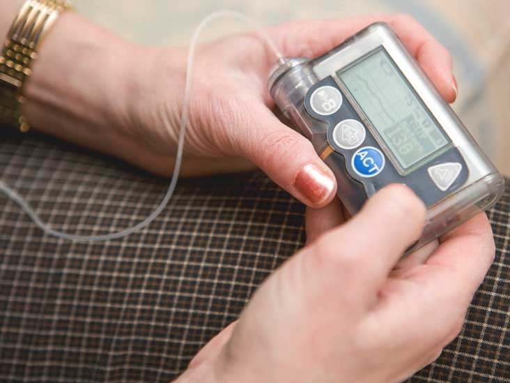Insulin Pumps for People with Diabetes