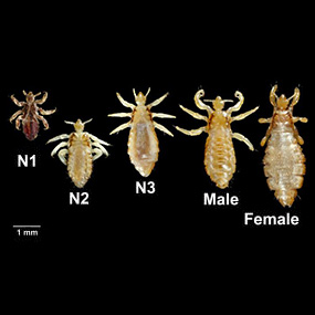 Head Lice Pictures: What Do Lice Look Like?