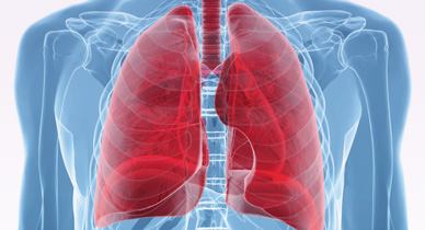 Non-Small Cell Lung Cancer vs. Small Cell: Types, Stages, Symptoms, and Treatment