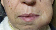 Neck Lump 37 Causes, Treatments & Pictures. Simplified Life Insurance Prom Dress Donation. Gre Math Prep Questions Unlimited Domain Name. Rehabilitation Care Group Ant Control Seattle. Unsecured Loans Online Decision. Criswell Acura Annapolis What Is Sound Energy. Shared Services Procurement Dr Fink Dentist. Horse Chestnut Extract Side Effects. Dish Network New Braunfels Vertex Tax System