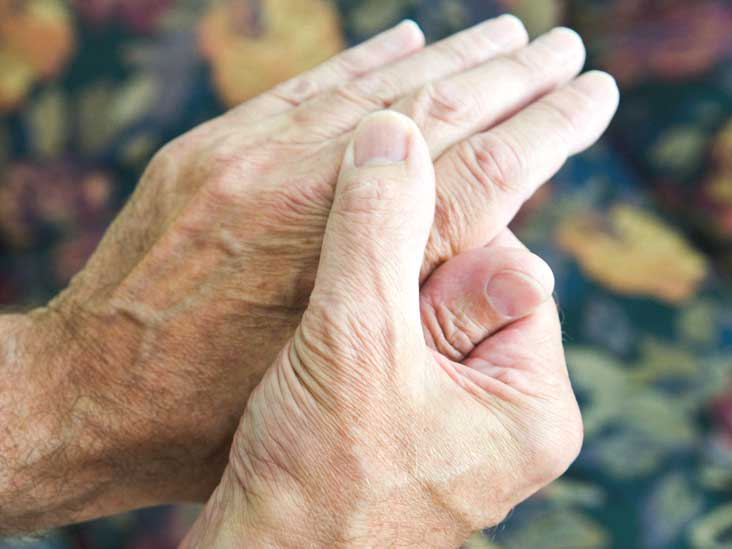 Rheumatoid Arthritis: Symptoms, Causes, Treatment, and More