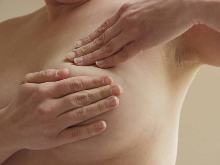 inflammatory breast cancer symptons