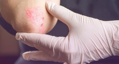 Psoriasis Do I Need A Skin Biopsy