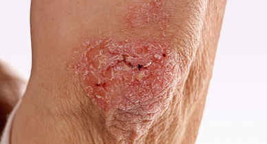 Psoriasis vs. Lichen Planus: Symptoms, Treatment, and More
