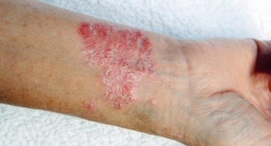 Do I Have Psoriasis or Scabies?
