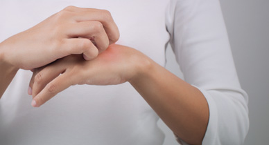 What Are the Early Signs of Psoriasis?