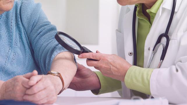 doctor determining psoriasis severity